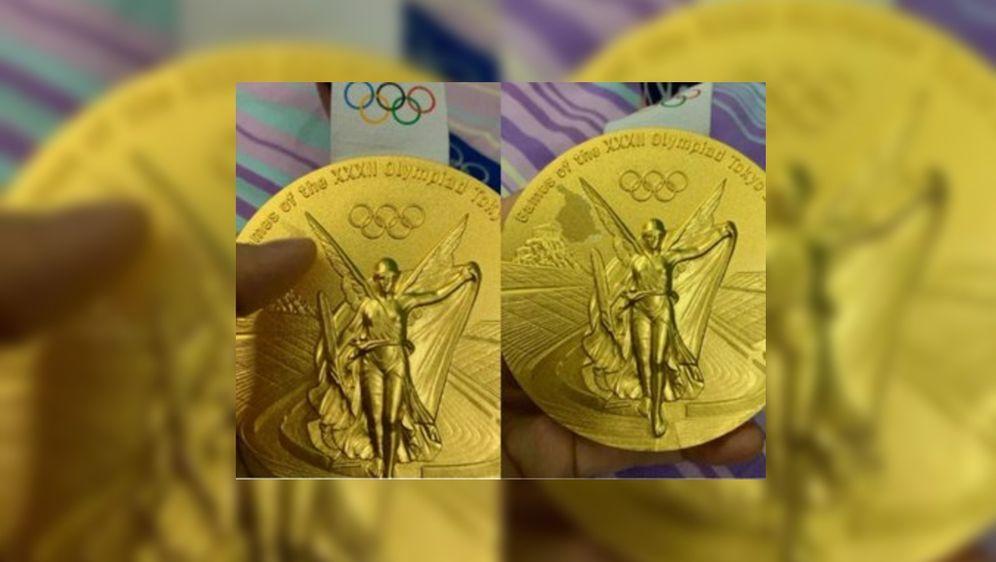 Bei der Medaille von Trampolin-Olympiasiegerin Zhu Xueying bilden sich erste... - Bildquelle: Twitter Cherry_Chen