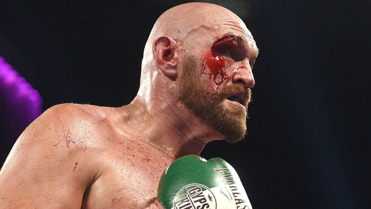 """""""Gypsy Krieger"""" - Fury gewinnt Blutkampf mit einem Auge - Bildquelle: 2019 Getty Images"""