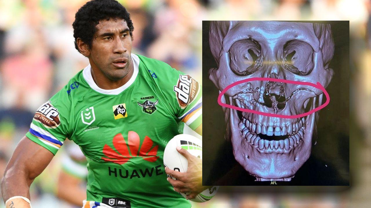 Rugby-Star zeigt seinen gespaltenen Schädel - Bildquelle: 2019 Getty Images/Instagram.com/sia_soliola