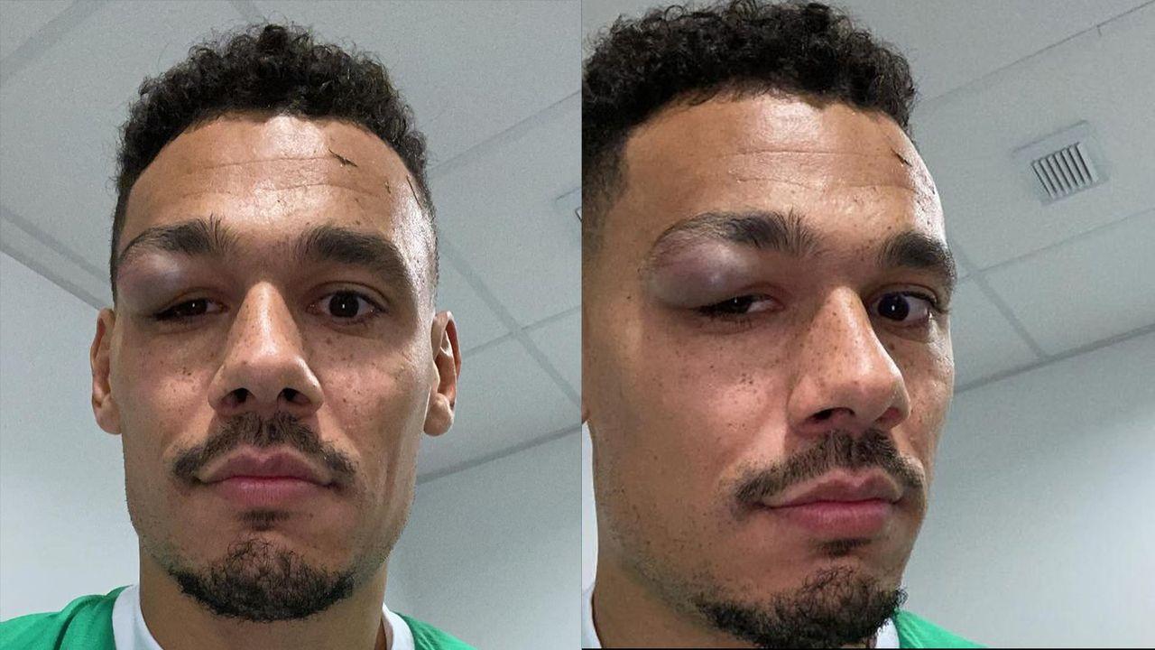 Ex-Gladbacher Timothee Kolodziejczak zeigt sein zugerichtetes Auge - Bildquelle: Facebook