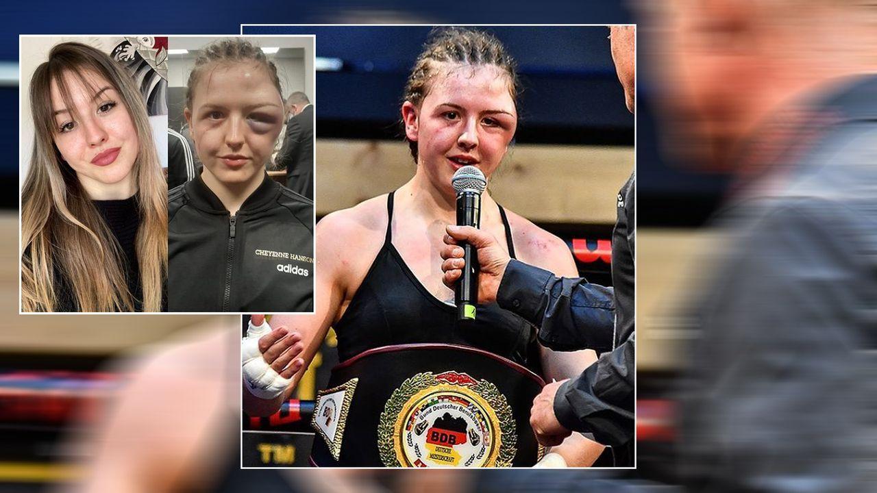 Nach Köpfstößen der Gegnerin: Boxerin Cheyenne Hanson mit Mega-Schwellungen - Bildquelle: cheyenne_hanson_boxing/instagram