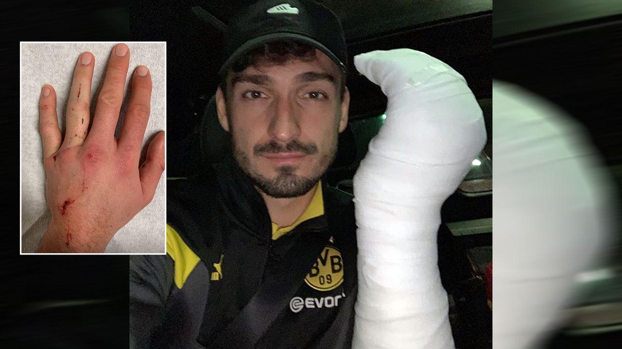 Mats Hummels zeigt seine kaputte Hand - Bildquelle: aussenrist15/instagram