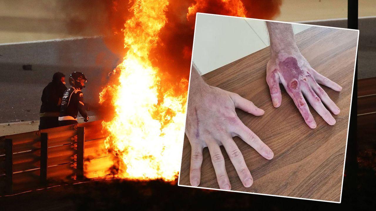 Romain Grosjean zeigt Verbrennungen nach Horror-Unfall - Bildquelle: imago/instagram.com