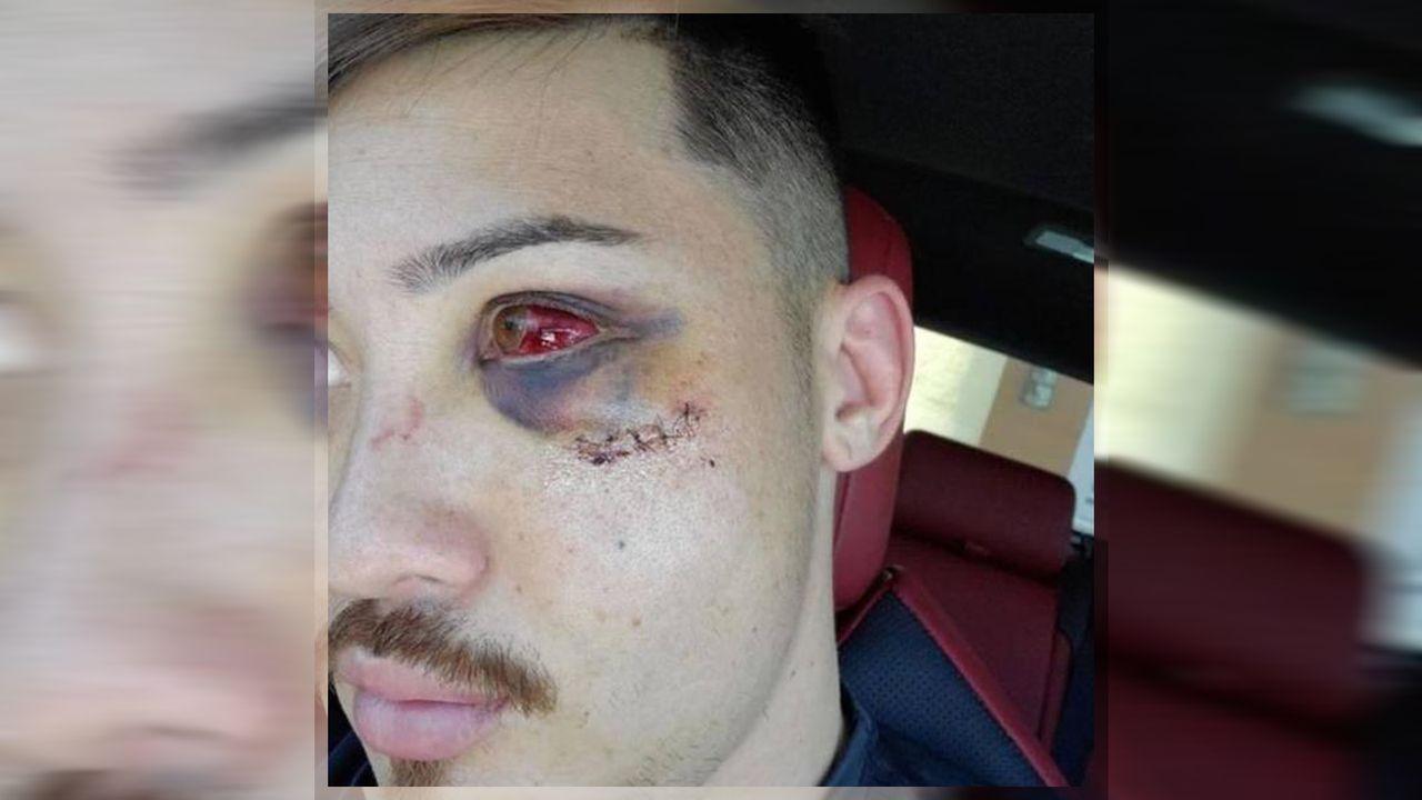 MMA: Dutzende Gesichtsverletzungen nach illegaler Attacke