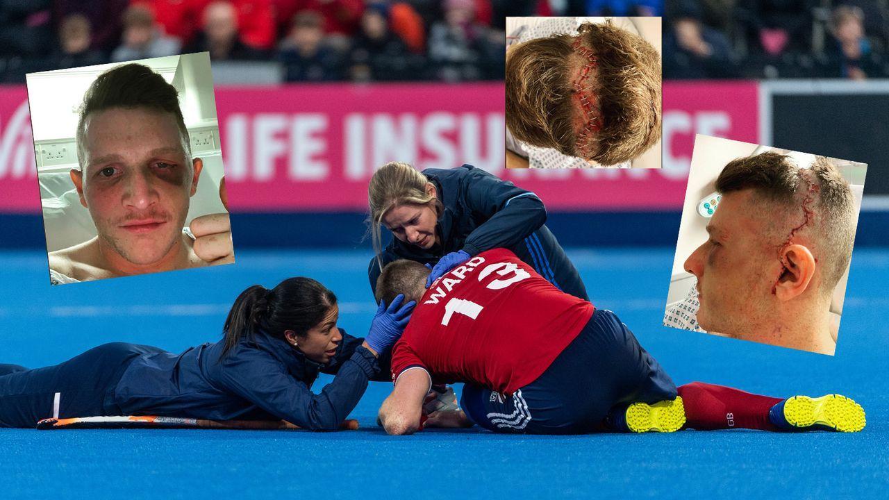 Hockey-Star Danny Ward mit schwerer Augen-Verletzung - Bildquelle: imago/twitter